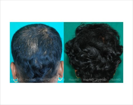 Female-hair-loss-before-after-result-45