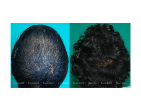 Female-hair-loss-before-after-result-46