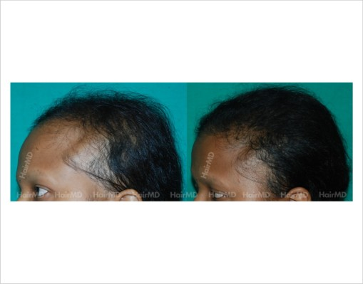 Female-hair-loss-before-after-result-49