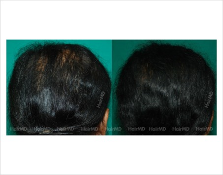Female-hair-loss-before-after-result-51