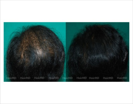 Female-hair-loss-before-after-result-52