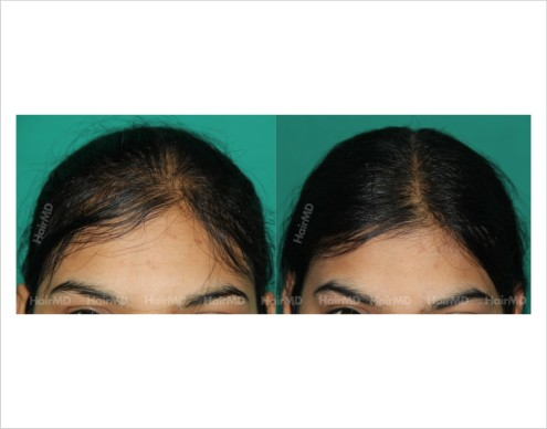 Female-hair-loss-before-after-result-53