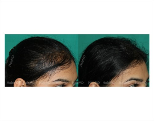 Female-hair-loss-before-after-result-54