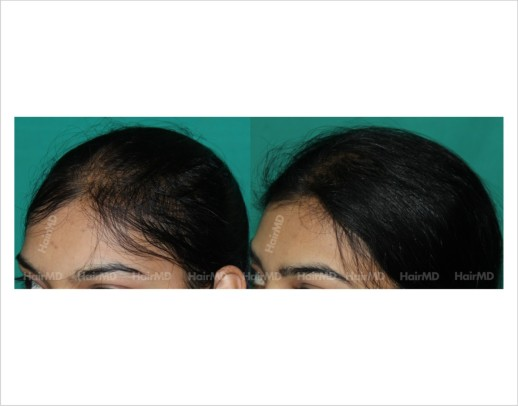 Female-hair-loss-before-after-result-55