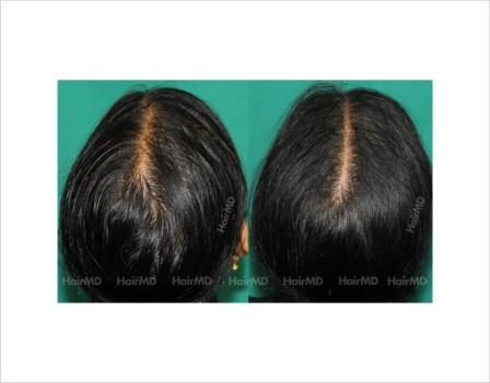 Female-hair-loss-before-after-result-58