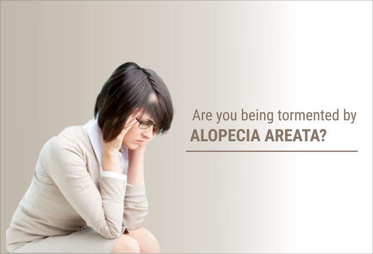 circular patchy hair loss - tormented by alopecia areata