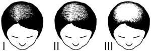 Female hair loss stages