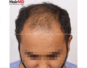 How to prevent hair fall for male