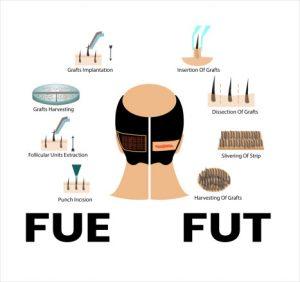 FUE vs FUT: Best method of hair transplant
