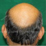 Why do men go bald
