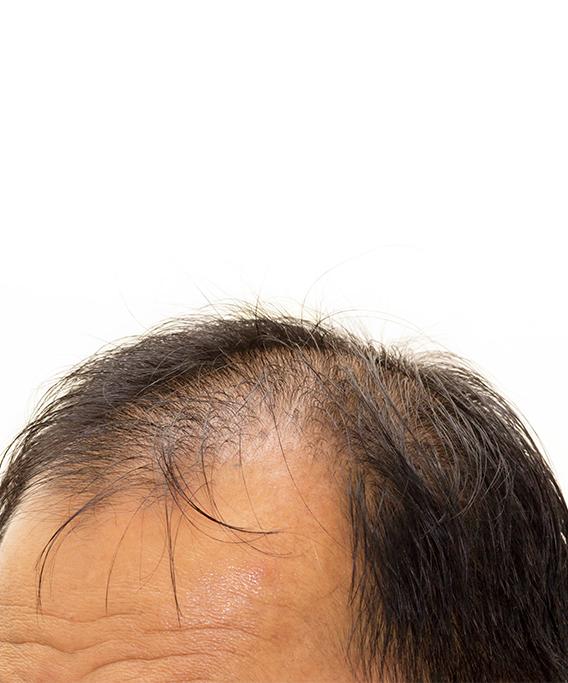baldness-home
